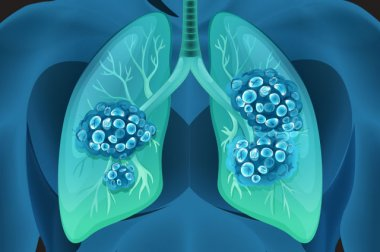 Low-dose CT screening for lung cancer now available